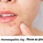 Pimples Ka Homeopathic Ilaj